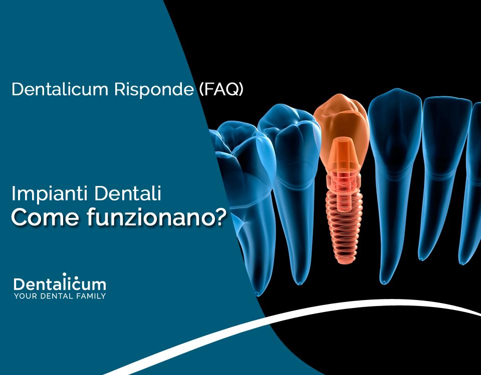 Dentalicum Risponde (FAQ): Impianti Dentali, come funzionanano?